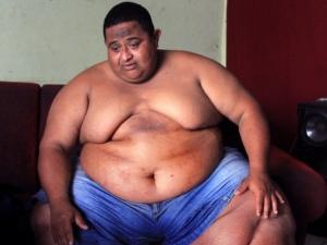 Alagoano com 220 quilos vive drama com elefantíase e pede ajuda