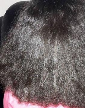 "PRECONCEITO RACIAL  Empregada ""orientada"" a alisar o cabelo deve ser indenizada"