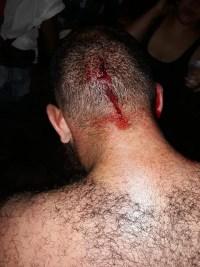 PR: Jovem com boné do MST é espancado por milícias de Bolsonaro em universidade