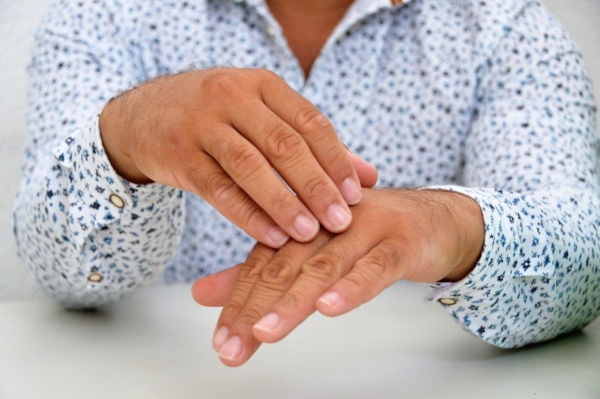 VIGILÂNCIA EM SAÚDE Mês de janeiro é dedicado à conscientização para prevenção da hanseníase
