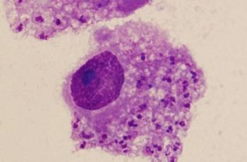 Cientistas identificam novo parasita que já infectou mais de cem pessoas no Nordeste