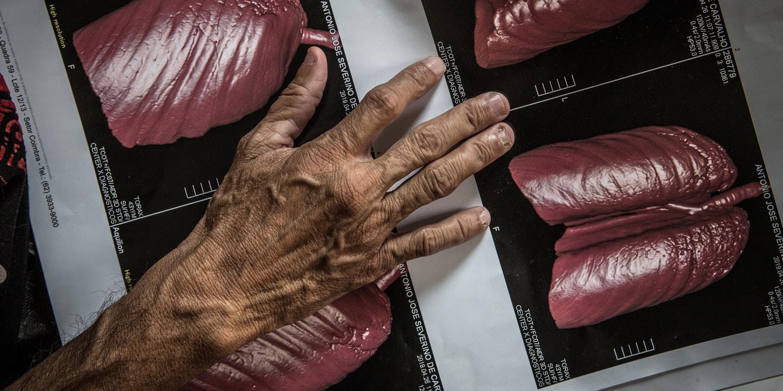 DOUTORES DA MORTE Laudos provam que médicos pagos por mineradora Sama, da Eternit, abafaram mortes por amianto