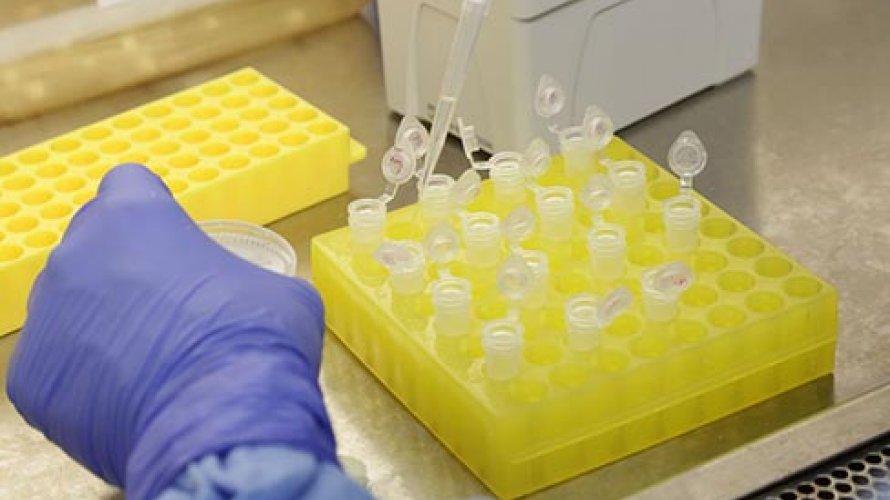 Homem de 33 anos é o paciente mais jovem a morrer pelo coronavírus no Brasil