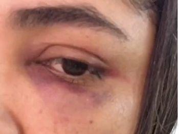 Vereador é suspeito de agredir a socos ex-namorada dentro do carro em Maceió