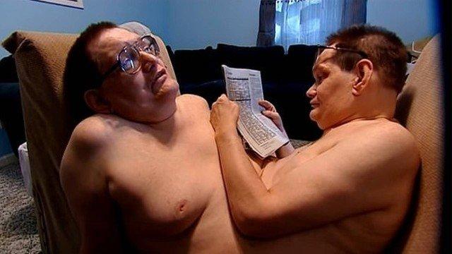 Morrem os gêmeos siameses mais velhos do mundo, aos 68 anos